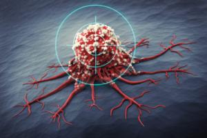 Targeted Drugs for Metastatic Breast Cancer | Full List 2020